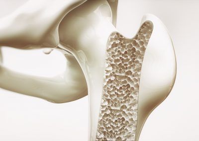 Osteoporosis Management